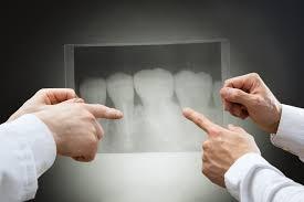 Лечение корневых каналов, инфекция десен и апикальная хирургия