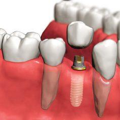 Восстановление зубов в Саратове