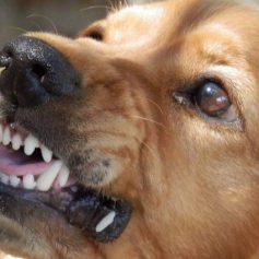 Следователи проводят проверку после нападения собак на ребенка в Смоленске